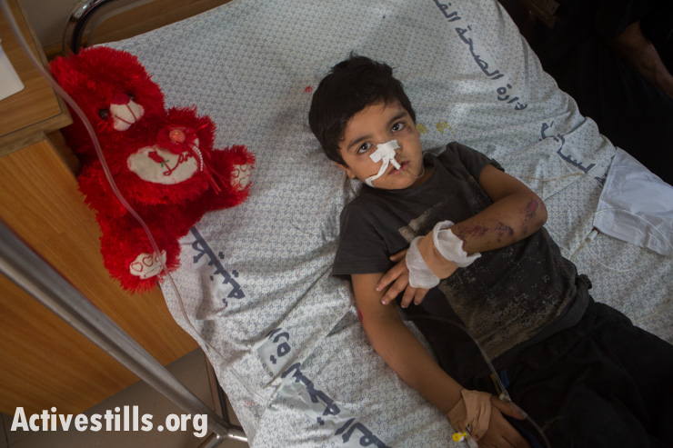 Hamda Abdun, age 4 , lies in a bed in Al Shifa Hospital after having been injured in an Israeli air strike, Gaza City, July 14, 2014. Four members of his family were injured.