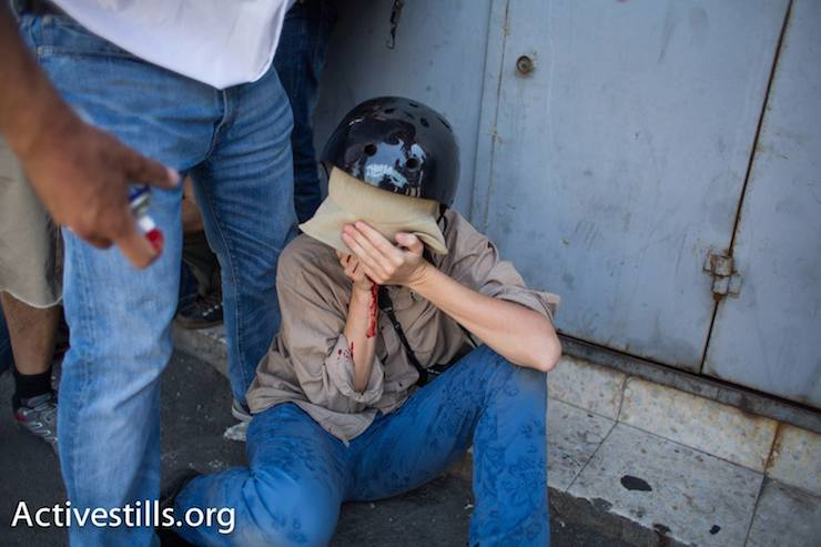 An Activestills photographer after being shot in the face with what is believed to be a plastic bullet fired by Israeli police. She was evacuated to a local hospital for treatment, July 2, 2014. (Photo: Activestills.org)