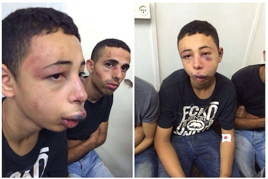 American citizen Tarek Abu Khdeir, 15, after being beaten by Israeli police. (Photos provided to Addameer by the Abu Khdeir family.)
