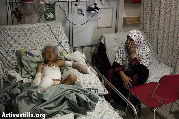4-year-old child injured in West Bank firebomb attack, August 17, 2012 (JC/Activestills)