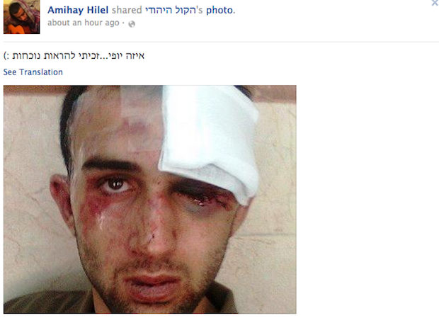 Palestinian youth beaten unconscious in attempted J'lem 'lynch'