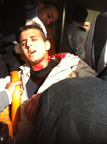 Yusuf Saba, 26, receives treatment after being hit in the head by a tear gas canister. November 16, 2012.(photo: Alon Aviram)