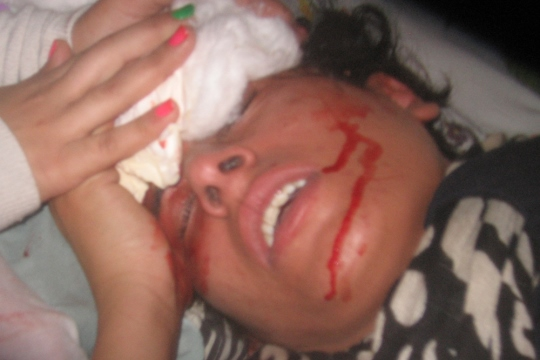 An Awad family member who was beaten by IDF soldiers during the arrest of her brother, May 27, 2013, in Budrus.