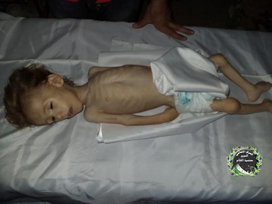 Ibrahim Khaleel, 3-year-old resident of Moadamiya who died of hunger on August 31, 2013. (photo: Moadamiyat al-Sham Media Center)
