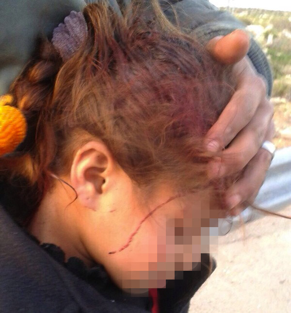 Six-year-old Palestinian girl after being reportedly attacked by the settlers of Havat Maon. (photo: B'Tselem/Nasser Nawaj'a)