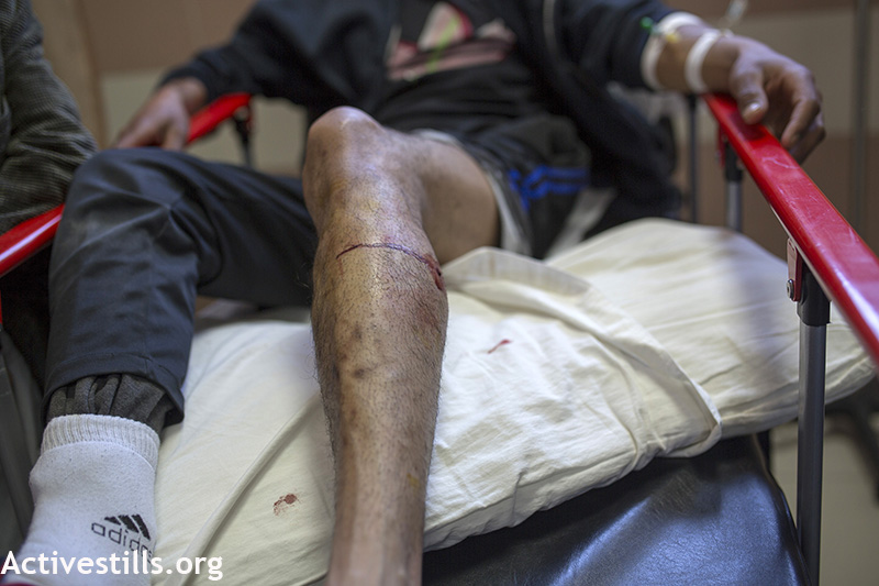The leg of a protester seen in Ramallah's hospital, West Bank, April 3, 2015. The youth was shot with life ammunition during the weekly protest against the occupation. Anne Paq / Activestills.org