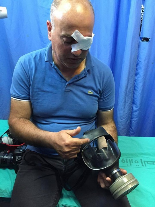 Palestinian photojournalist Nidal Ashtiyeh examines his gas mask at a Nablus Hospital. An Israeli rubber bullet struck the glass of his mask, which shattered and wounded his eye, May 16, 2015. (Photo: Ahmad Talat Hassan)