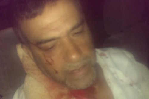Palestinian resident of Lydd, Amad Abu Sharah, after he was attacked in the early hours of the morning, allegedly by religious Jews. (photo: ledawy.net)