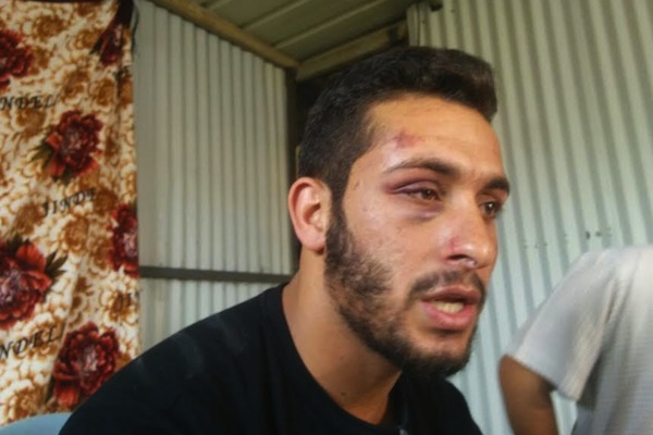 Maysam Abu-Alqiyan pictured after being assaulted by Border Policemen outside a central Tel Aviv supermarket where he works. (photo: Negev Coexistence Forum for Civil Equality)