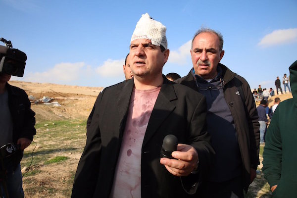 MK Ayman Odeh holding the sponge-tipped bullet he says who shot at him by Israeli forces in Umm al-Hiran, January 18, 2017. (Joint List)