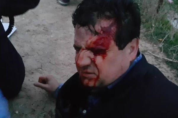 MK Ayman Odeh with blood dripping down his face from what he claims is a sponge-tipped bullet wound and police claim is a stone. (Photo: Joint List)