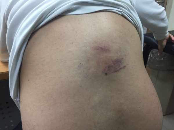 Joint List MK Ayman Odeh's back, showing round bruising that is consistent with an injury caused by a sponge-tipped bullet. (Joint List)