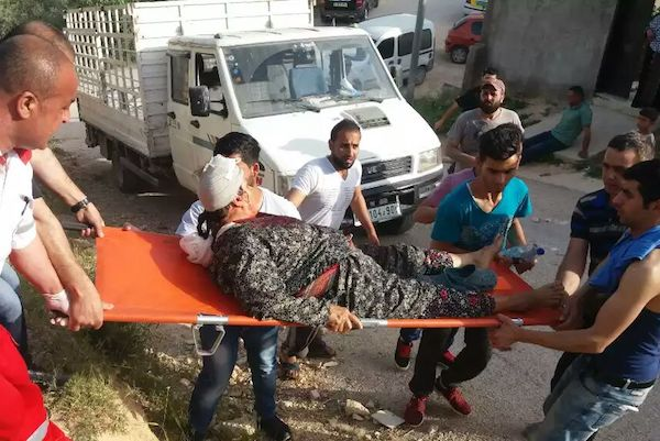A Palestinian women is stretchered away with a head injury after settlers attacked the village of Huwwara, West Bank, April 22, 2017. (Yesh Din)