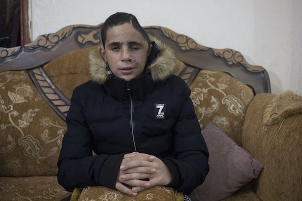 Mohammed Tamimi, 15, was shot in the head with a rubber-coated bullet by the Israeli army shortly before the video of Ahed and Nur was filmed, Nabi Saleh, West Bank, January 5, 2018. (Oren Ziv/Activestills.org)