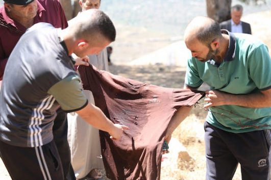 Two men hold Izz ad-Din's Tamimi bloody shoot in the West Bank village of Nabi Saleh. June 6, 2018. (Oren Ziv/Activestills.org)