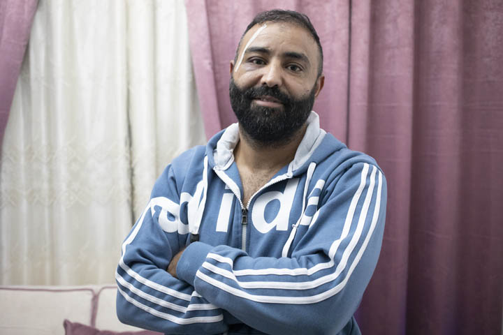 Adam Masri in his house in Issawiya, East Jerusalem, November 11, 2019. (Oren Ziv/Activestills.org). Masri claims to have been assaulted twice by police in the space of two weeks.