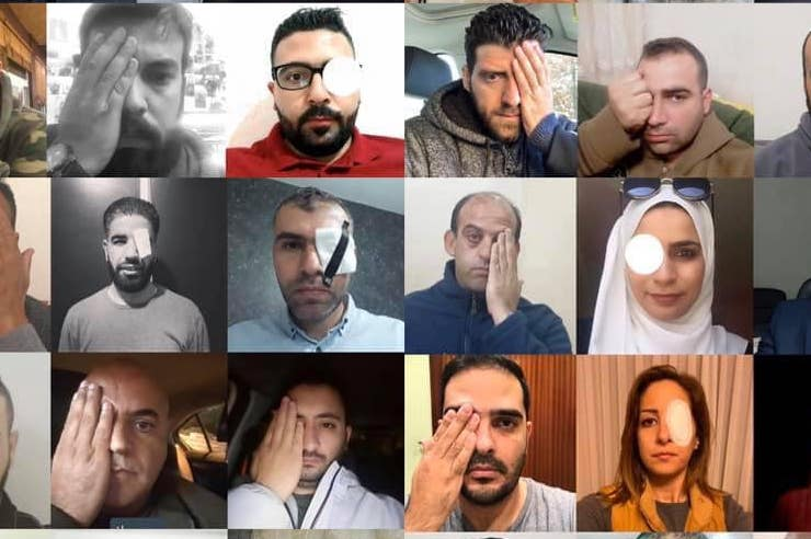 Palestinian journalists take part in a solidarity campaign with Moath Amarnih, a Palestinian photographer who lost his eye while covering clashes in the West Bank.