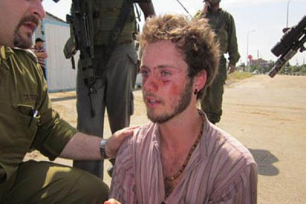 An injured protester, handcuffed and bleeding. Photo: Popularstruggle.org