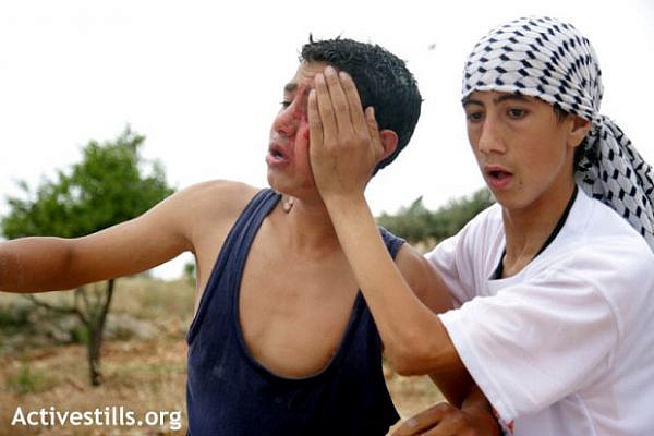A young Palestinian is seen injured during a protest against the wall in Bilin, april 2004 (photo: Anne Paq/Activestills)