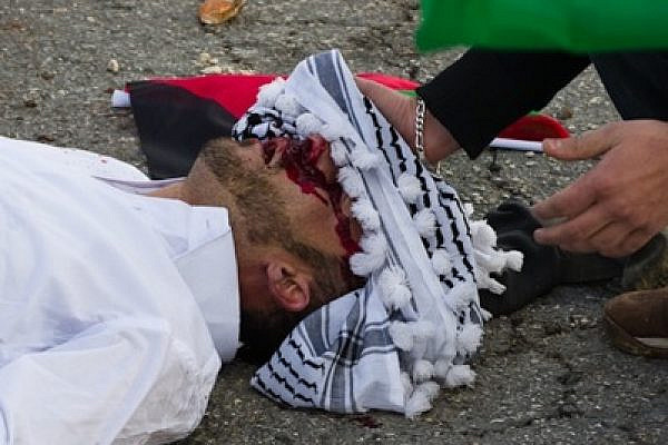 Mustafa Tamimi's injured head wrapped in a kuffiyeh (photo: Lazar Simeonov)