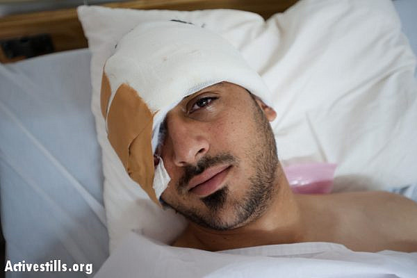 Mohammad Al-Azza rests in the hospital the morning after being shot in the face with a rubber-coated steel bullet by Israeli forces in Aida Refguee Camp. Beit Jala, West Bank, April 9, 2013. Al-Azza underwent two surgeries to remove the bullet, which lodged in his cheek below his right eye and fractured his skull. He is expected to make a full recovery. (Photo by: Ryan Rodrick Beiler/Activestills.org)