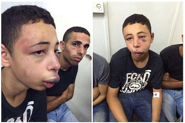 American citizen Tariq Abu Khdeir, 15, after being beaten by Israeli police. (Photos provided to Addameer by the Abu Khdeir family.)
