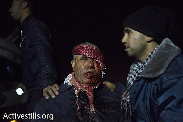 A man bleeds from his head during clashes between Bedouin and Israeli police in the city of Rahat, January 18, 2015. (photo: Oren Ziv/Activestills.org)