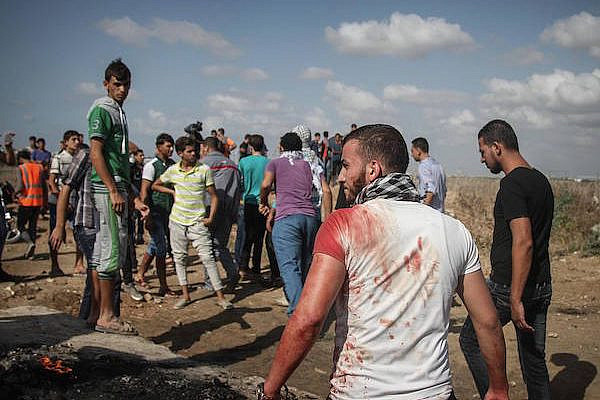 A bloodied Palestinian protester is seen at a protest in the eastern Gaza Strip that left six Palestinians dead and over 130 injured when IDF troops opened fire over the border, Gaza Strip, 9 October, 2015. (Ezz Za'noun)