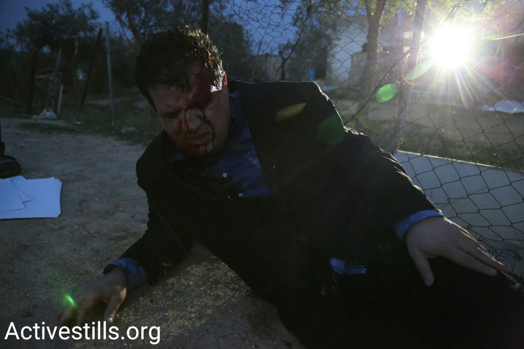 MK Ayman Odeh lies wounded from sponge-tipped bullets next to Israeli police in the Bedouin village of Umm el-Hiran, Negev, January 18, 2017. (Keren Manor/Activestills.org)