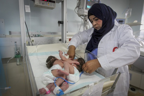 A Palestinian doctor treats conjoined twin boys in a hospital in the West Bank city of Hebron, March 16, 2017. (Wisam Hashlamoun/Flash90)
