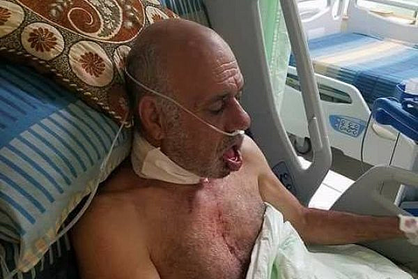 Tayseer Hasan Saliman, 64, is seen in Nablus' Rafidia Hospital, after being brutally attacked by Israeli settlers. Saliman suffered nine fractures in his lower jaw and neck. (Huwarra municipality)