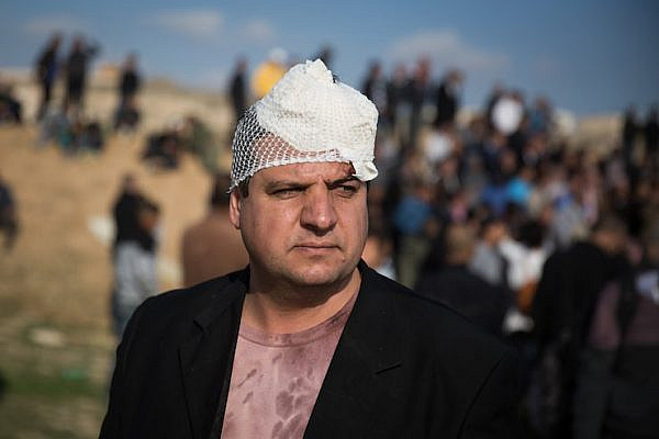Joint List Chairman Ayman Odeh at the Bedouin village of Umm al-Hiran in southern Israel, after being hit in the head with a sponge-tipped bullet on January 18, 2017. (Hadas Parush/Flash90)