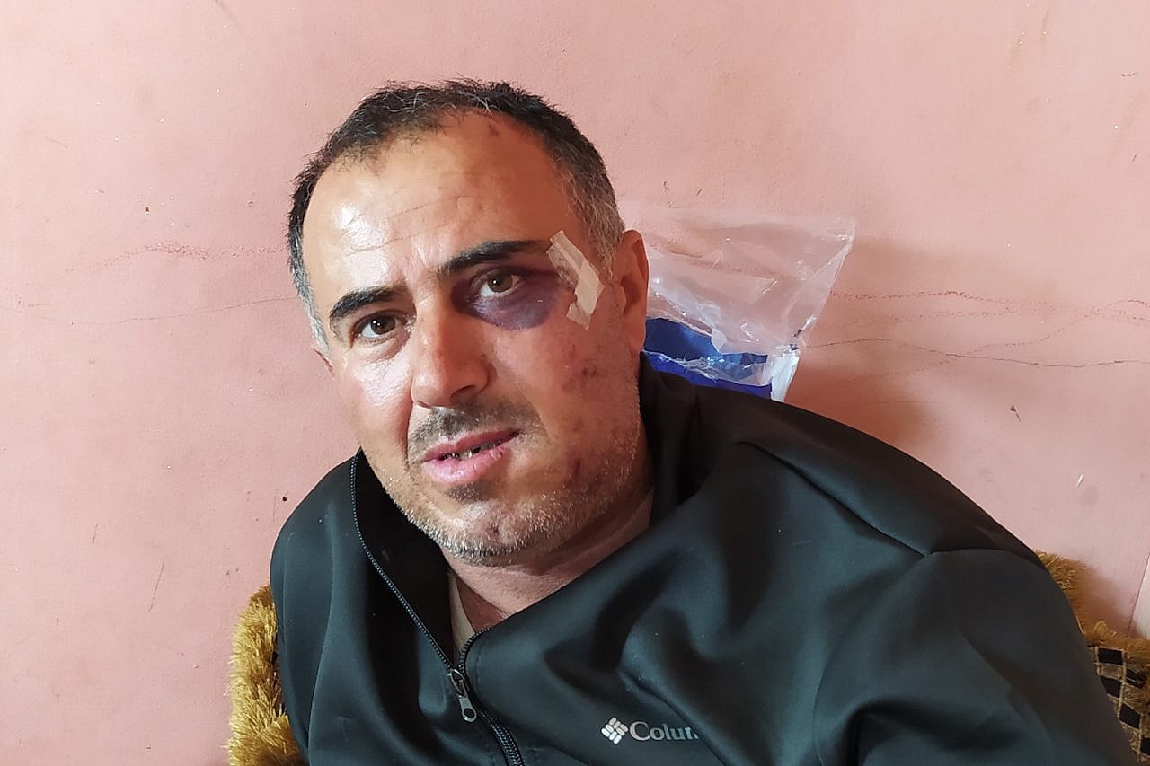 Said Abu Aliyan seen in Hebron's Al-Ahli Hospital after he was attacked by a settler in the South Hebron Hills, West Bank, March 13, 2021. (Guy Butavia)