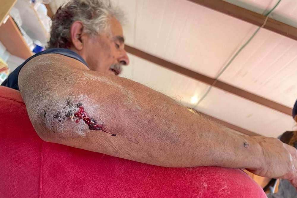 American activist Robert Subeiri seen after being attacked by Israeli settlers in the South Hebron Hills. (Courtesy of Hineinu)
